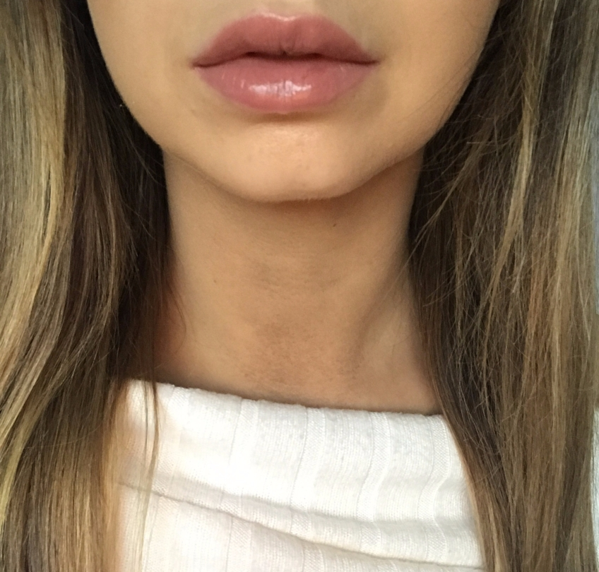 lip fillers, lip augmentation, photography, lip filler before and after, beauty blogger,